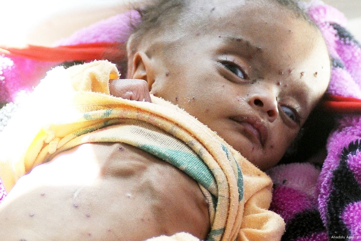 A malnourished baby receives medical treatment at al Sabeen Maternal Hospital in Sanaa, Yemen on Universal Children's Day on 20 November, 2017 [Mohammed Hamoud/Anadolu Agency]