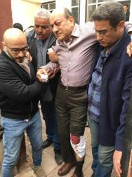 People surround Hisham Geneina after he was attacked outside his home in Cairo, Egypt