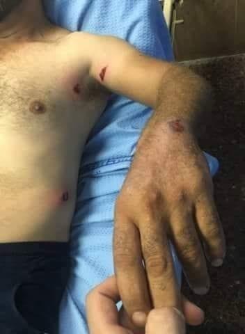 A Palestinian sheep herder was injured after Israeli forces shot him in Nablus, West Bank