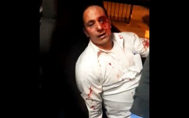 Nidal Fakih, a bus driver from the Shuafat neighbourhood of Jerusalem, was attacked by settlers 13 December 2018 [Twitter]