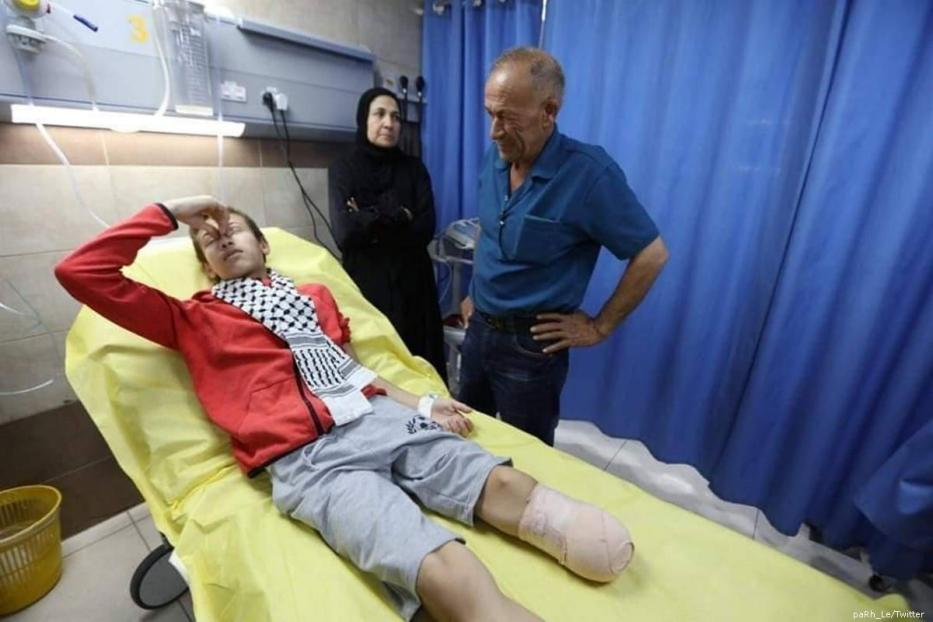 14-year-old Palestinian boy was forced to undergo a leg amputation after an Israeli soldier shot him as he retrieved a football near the Separation Wall in the West Bank [paRh_Le/Twitter]