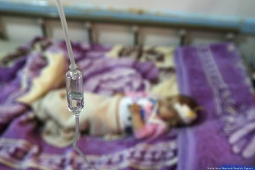 A malnourished infant receives treatment at Sabeen hospital in the Yemeni capital Sanaa, on 7 October 2019. [Mohammed Hamoud - Anadolu Agency]