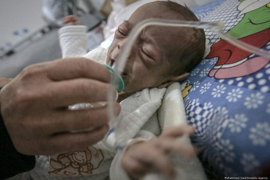 A malnourished Syrian infant is seen at a hospital receiving treatments in Idlib, Syria on 5 October 2019 [Muhammed Said/Anadolu Agency]