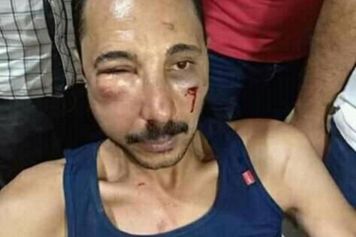 Ahmed Ramzi Alwan, an Egyptian lawyer was beaten up by Egyptian police over a parking dispute