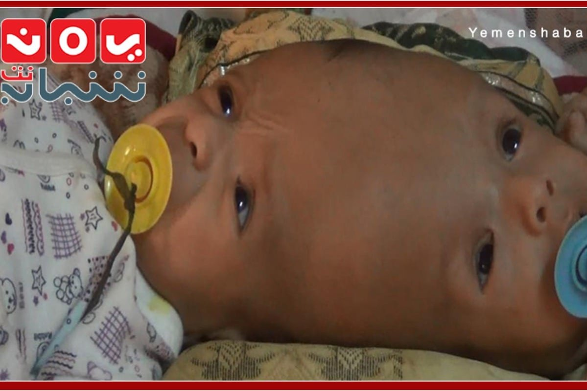 Conjoined twins Yousef and Yassin ... suffer more while getting older, as their family could not afford the separation surgery [YemenShababNet]