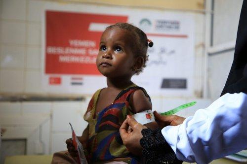 Volunteer of Earth Doctors provide medical nutrition and treatment services to Yemeni children, in Sanaa, Yemen on September 24, 2021 [Said İbicioğlu / Anadolu Agency]