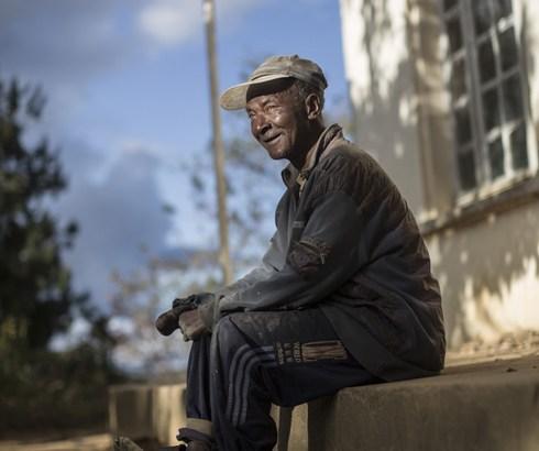 Journée mondiale de la lèpre : La lèpre peut être guérie si traitée à temps