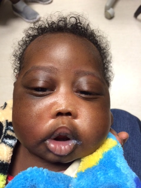 Holoprosencephaly - Midwest Sinus and Allergy
