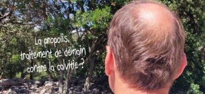 propolis-contre-la-calvitie