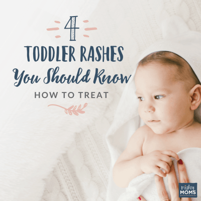 4 Toddler Rashes You Should Know How to Treat