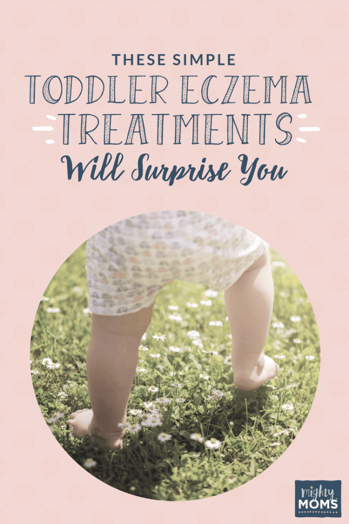Treating toddler eczema at home - MightyMoms.club