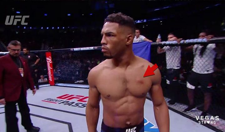UFC 216 announce team was told to not discuss Kevin Lee's staph
