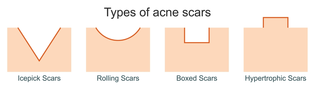 Acne scar remedies for black skin