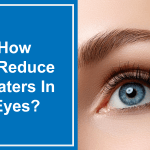 How To Reduce Floaters In Eyes