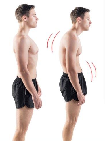 Forward Head Posture Fix 10 exercises