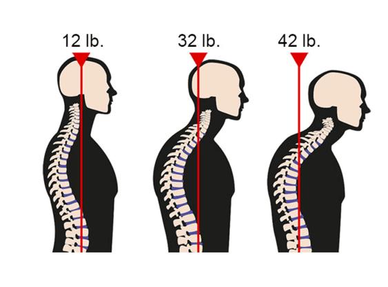 Forward Head Posture Fix pdf