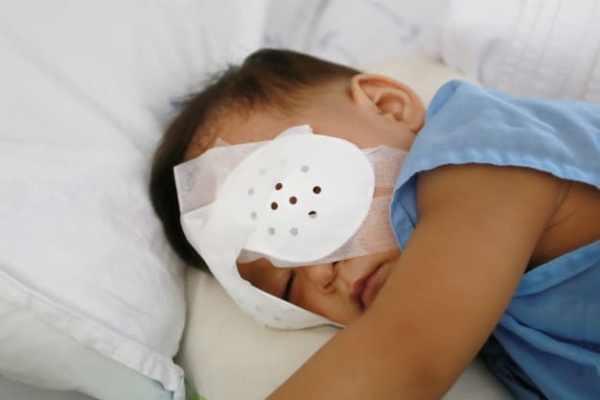 bebê com tampão cirúrgico nos olhos