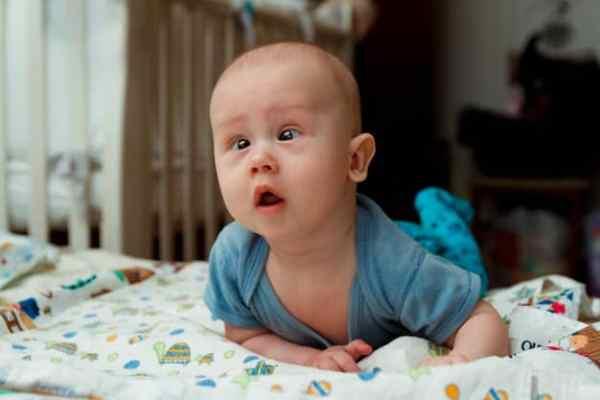 bebê com estrabismo