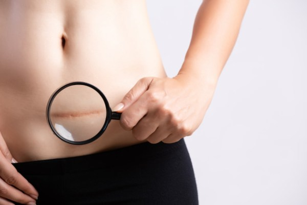 Cicatriz de cesariana