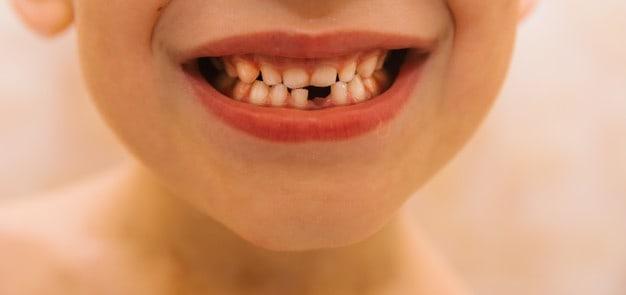 dente natal e neonatal