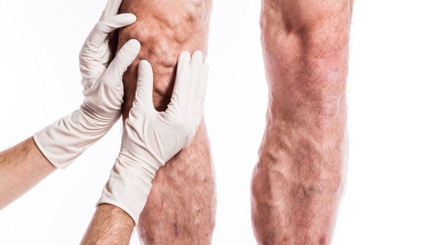 Are Varicose Veins Just Cosmetic or a Legitimate Health Concern?