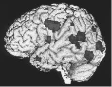 """Colored positron emission tomography scan (PET scan) of the brain of a patient with schizophrenia who is experiencing a hallucination. Highlighted areas show brain activity. The patient's hallucination consisted of heads that spoke to him. The active areas of the brain seen here (the auditory and visual areas) confirm that the patient """"saw"""" and """"heard"""" the heads in the hallucination. (Wellcome Dept of Cognitive Neurology. Photo Researchers, Inc./Science Source. Reproduced by permission.) See color insert for color version of photo."""