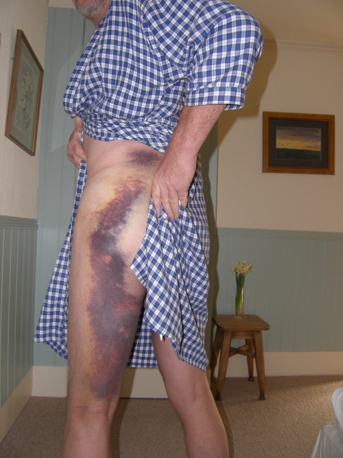 Showing off the bruise on Bobby's left leg.