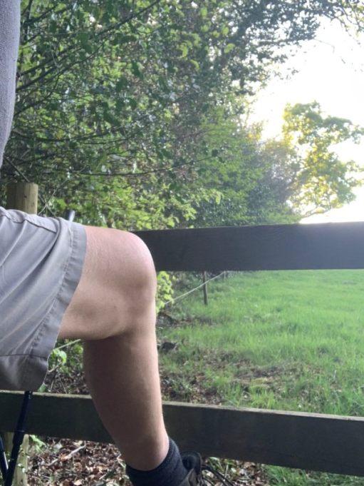 Bobby's leg as he climbs over a stile.