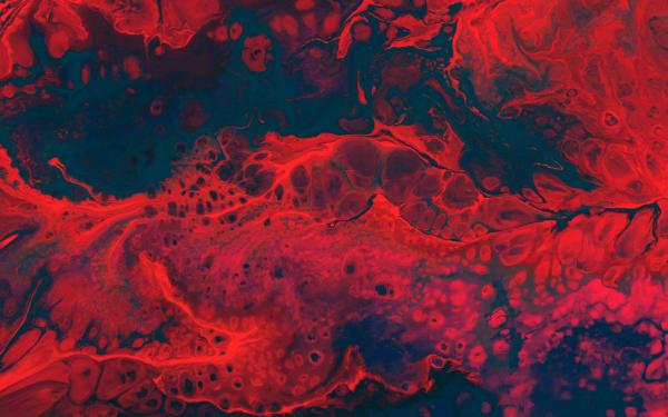 Premenstrual dysphoric disorder (PMDD)-Bloody Period