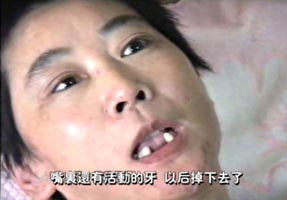 恶警和犯人用木棒把李萍的牙齿撬掉多颗