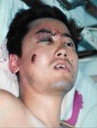 被警察殴打的右眼肿得特别高