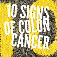 10 Signs of Colon Cancer