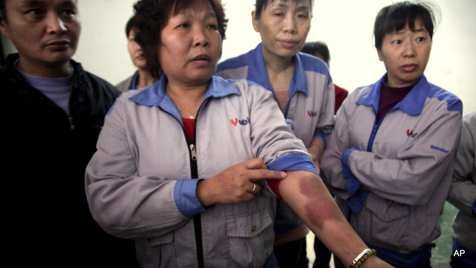 In this March 26, 2015 photo, one of workers shows bruises which she says were caused by police as they moved to suppress a demonstration by workers two days earlier, inside the Cuiheng Handbag Factory in Nanlang township in Zhongshan city in southern China's Guangdong Province. A Nanlang government statement said it dispatched a team March 24 to persuade the workers to return to work, but that some of them were flattening tires, destroying a surveillance camera, displaying banners and preventing other workers from returning to the workplace. Four workers were detained. Workers said they were holding a peaceful rally when police attacked them.