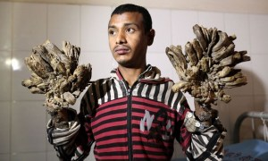 Abul Bajandar l'homme-arbre bangladesh