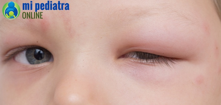 Celulitis periorbitaria en niños