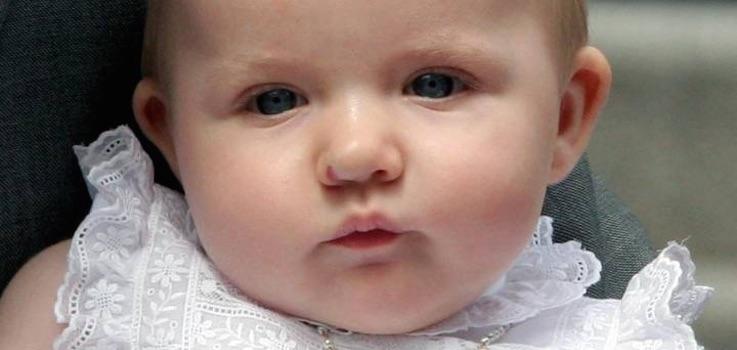 Angiomas y Hemangiomas en Niños y Bebés