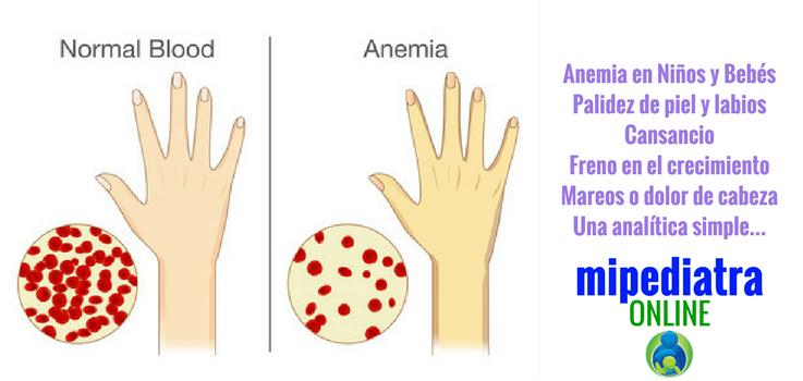 Anemia en niños y bebés