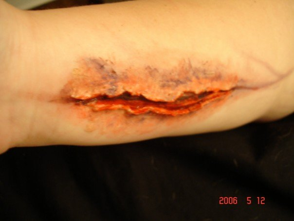 trauma, wound, sfx make up, special effects makeup, horror, gore, suicide attempt, wax, liquid latex