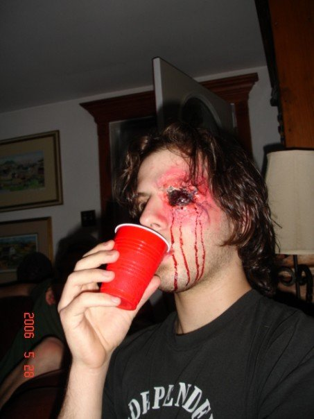 trauma, wound, sfx make up, special effects makeup, gouged eye, blood, solo cup, gaping hole
