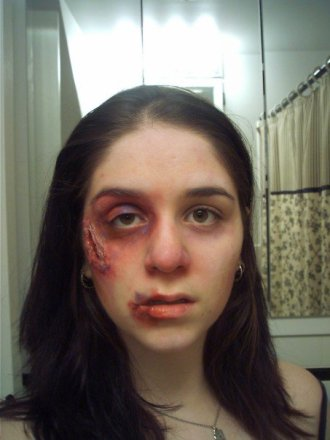 trauma, wound, sfx make up, special effects makeup, swollen eye, black eye, fat lip, laceration