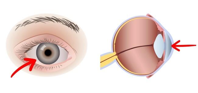 Zachování zraku díky luteinu