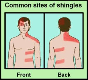 Success with Shingles