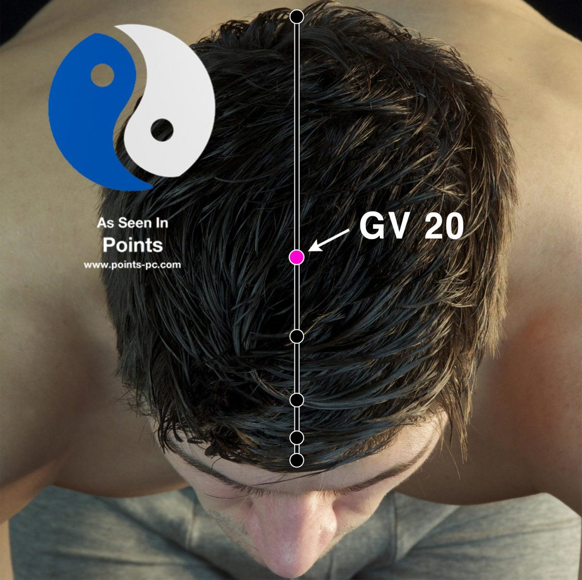 Acupuncture Point: Governor Vessel 20