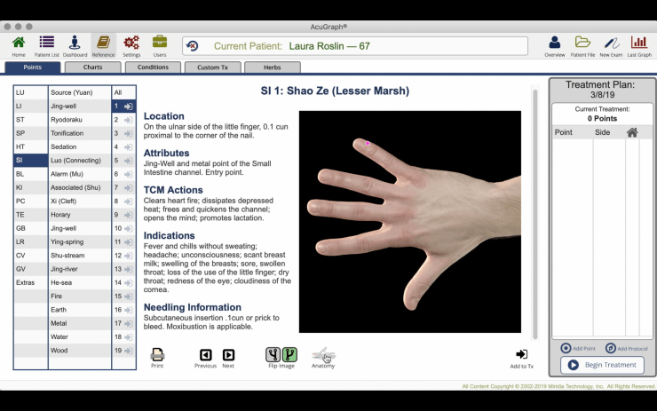 New Anatomical Reference Image Feature in AcuGraph 5.3.0.7