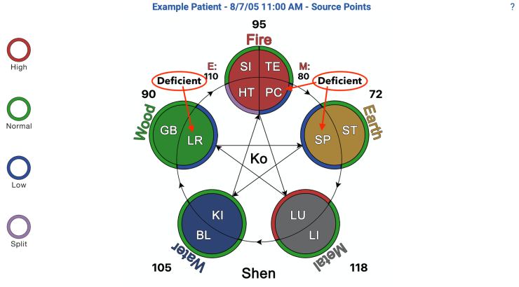 acupuncture meridians in the 5 Elements view