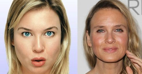 renee-comparison-renee-zellweger-s-transformation-needs-to-be-seen-to-be-believed