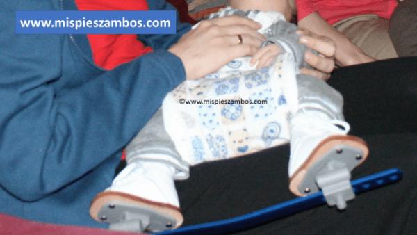 Dar el pecho a un recién nacido con la férula Dennis-Brown