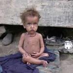 Nepal Mission Victim-of-malnutrin NEPALESE CHILDREN ARE IN PRESS
