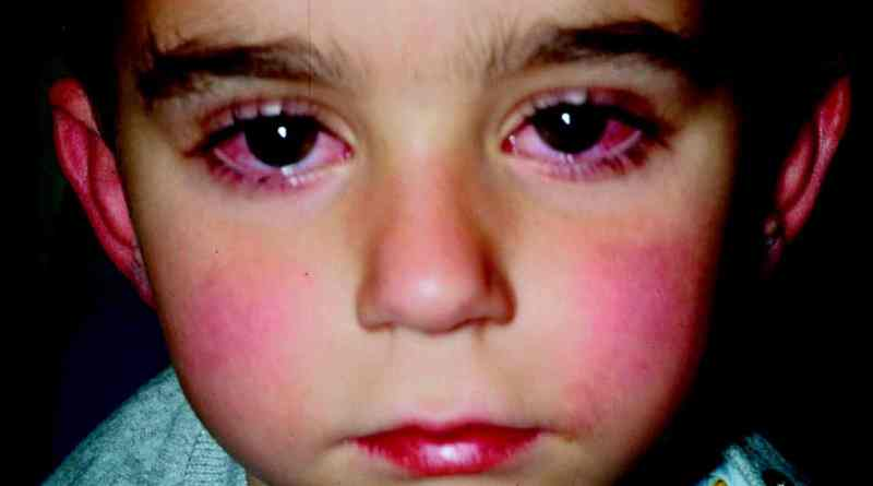 Malattia di Kawasaki e COVID-19: esiste una correlazione ...