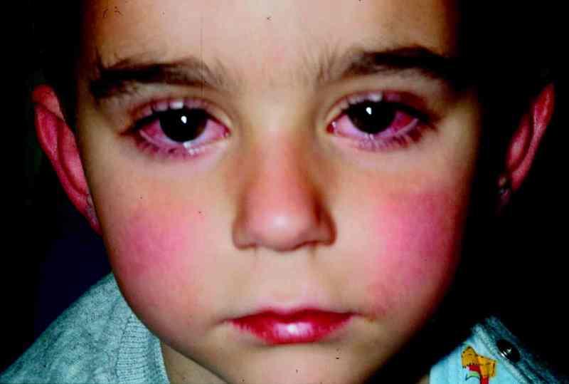 Malattia di kawasaki. kawasaki e coronavirus